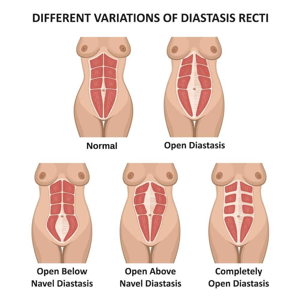 Can Diastasis Recti Cause Bowel Problems?